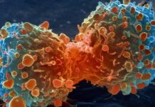 rak_cancer.jpg