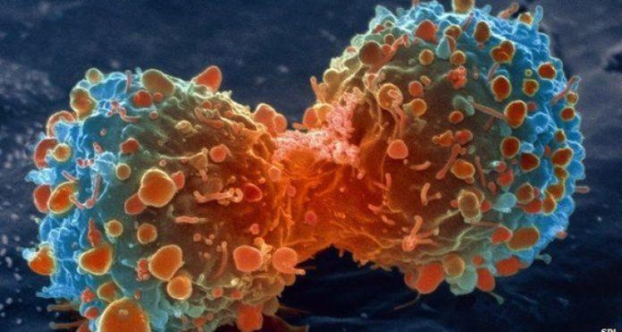 rak_cancer.jpg